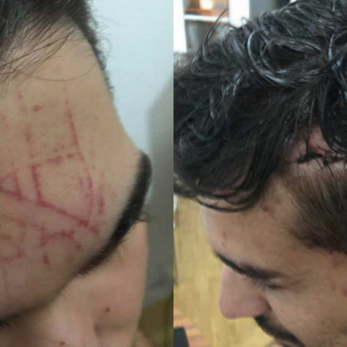 Coimbra: Dois homens agredidos por se beijarem em público